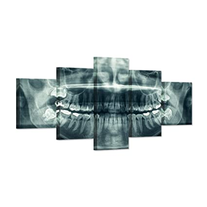 .com: hello artwork - modern home canvas art x-ray dental ...