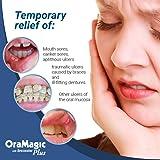 OraMagic Plus Mouth Rinse w/Benzocaine - 8oz - MPM