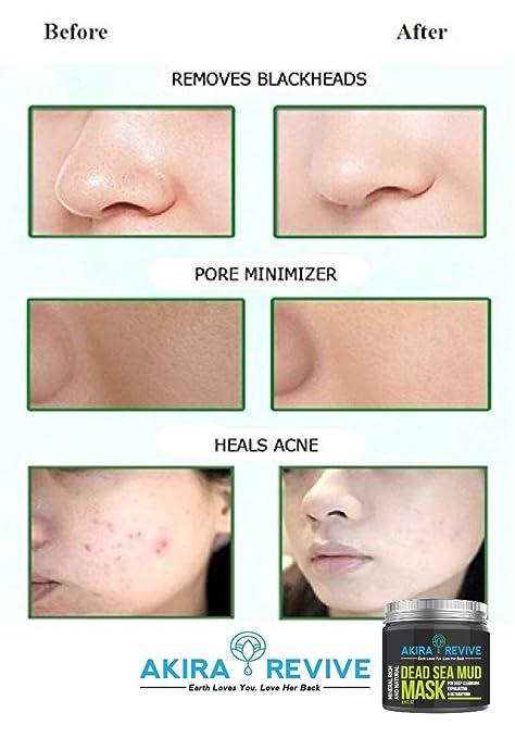 Máscara de barro del Mar Muerto Akira Revive para la cara, la piel grasa y las espinillas - Minimizador de poros, reductor y limpieza - Natural para una ...