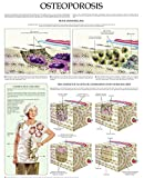Osteoporosis e-chart: Quick reference guide