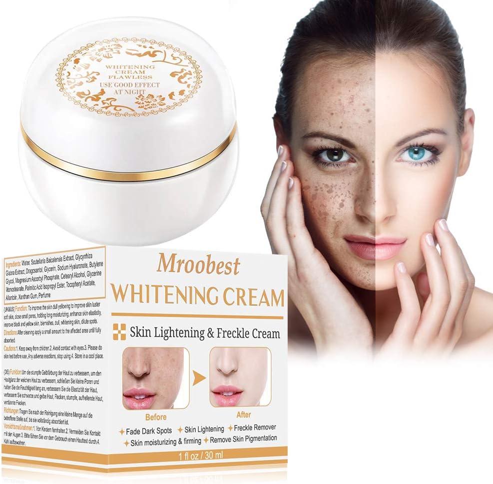 Crema blanqueadora, crema iluminadora, crema aclaradora, tratamiento facial antienvejecimiento para hiperpigmentación, tono de piel desigual, puntos oscuros y daños del sol, 30 ml: Amazon.es: Belleza