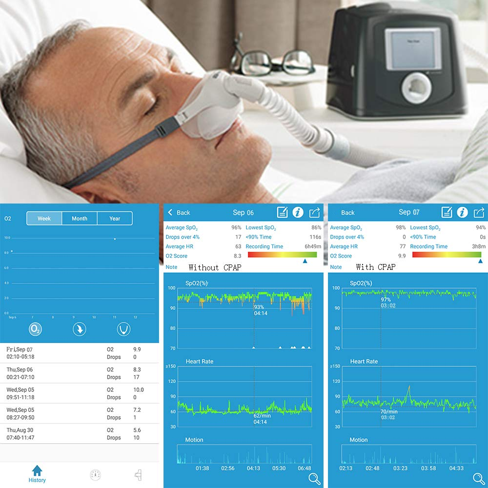 Lookee Ring Sleep Monitor w Vibrating Notification for Low Blood O2 and Snoring, Tracking Overnight Oxygen Saturation Level, Heart Rate w Finger Ring Sensor as Sleep Aid, Daily App Report Wellness Use by LOOKEE (Image #5)