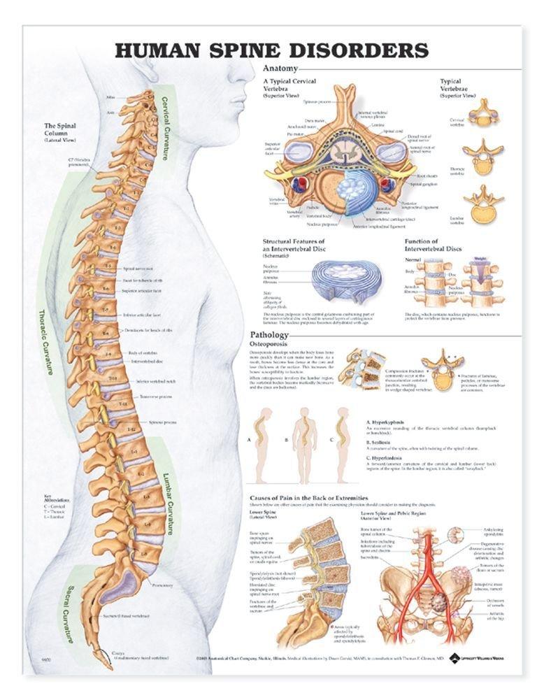 Anatomical Chart Company Human Spine Disorders Chart