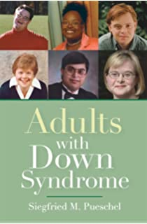 Case Study Of Student With Down Syndrome   Free   Resume   Samples BJPsych
