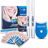 Tiras blanqueadoras de dientes-Tiras blanqueadoras sin peróxido profesionales