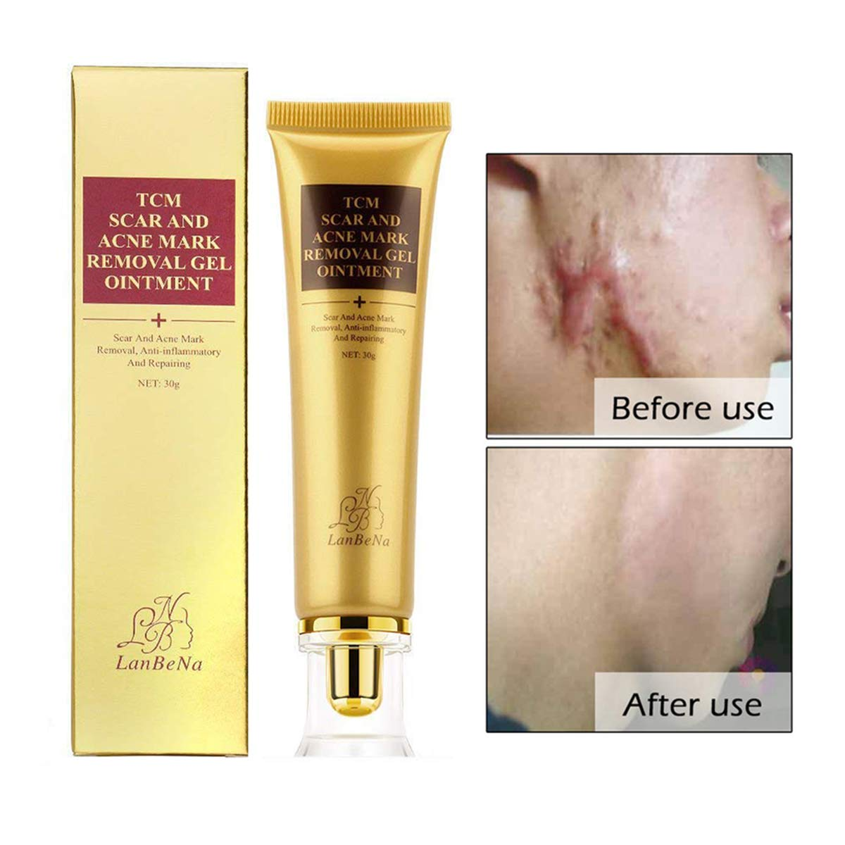 Buy Garyob Acne Scar Removal Cream Skin Repair Face Cream For