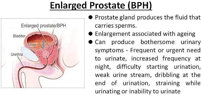 video de notas de piedras en la próstata y vejiga