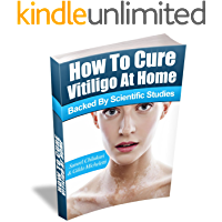 How To Cure Vitiligo at Home: (Backed by Scientific Studies) (English Edition)