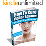 How To Cure Vitiligo at Home: (Backed by Scientific Studies)