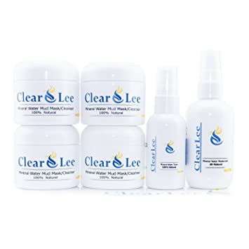 amazon com clearlee clear skin set with mineral water mud mask
