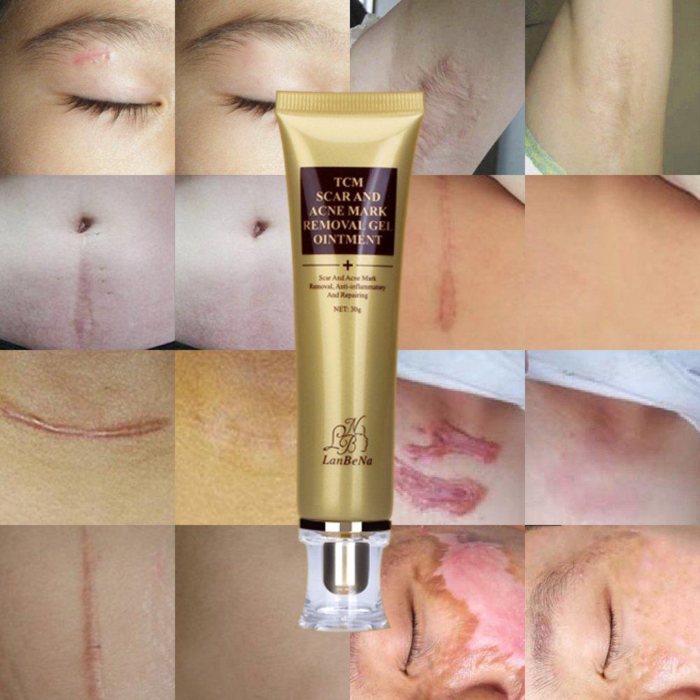 amazon com wisdompark acne scar removal cream skin repair face