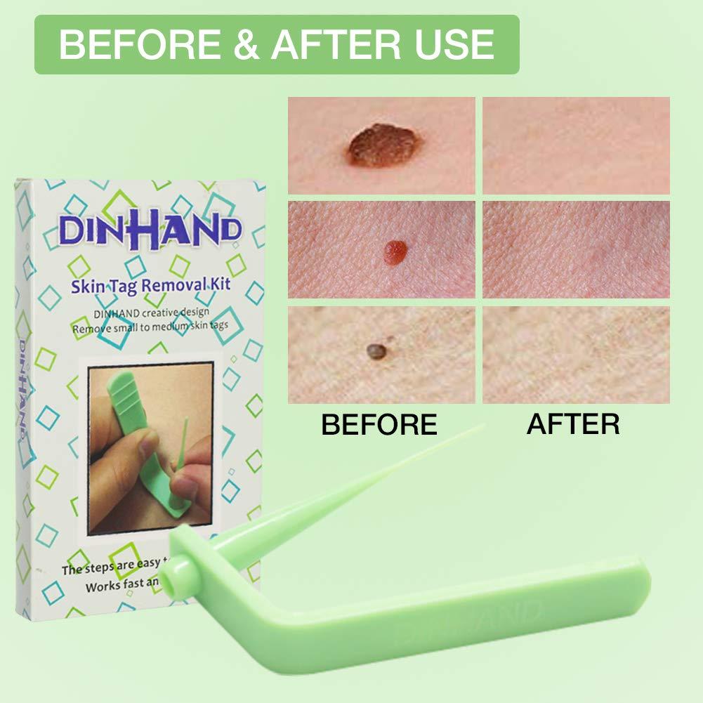 Amazon Com Premium Micro Skin Tag Remover Device Skin Tag