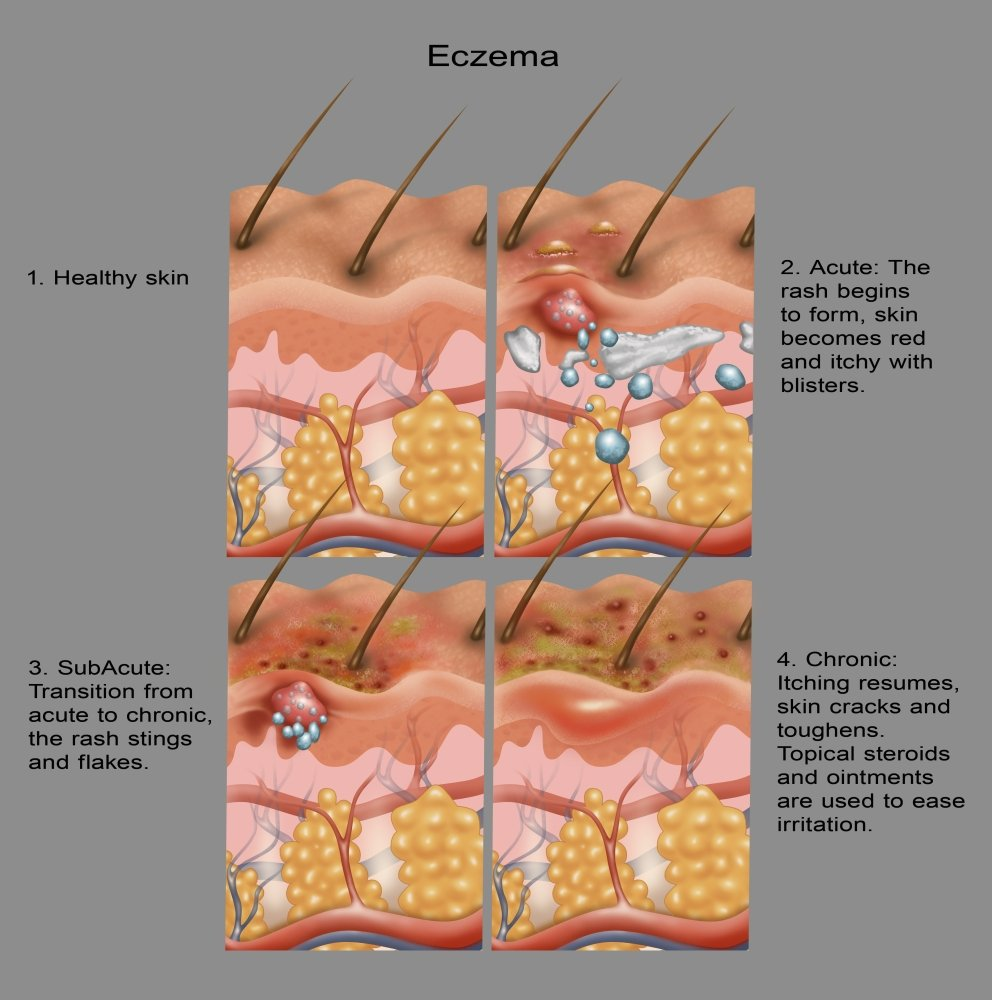 24 x 24 Eczema Poster Print by Gwen ShockeyScience Source