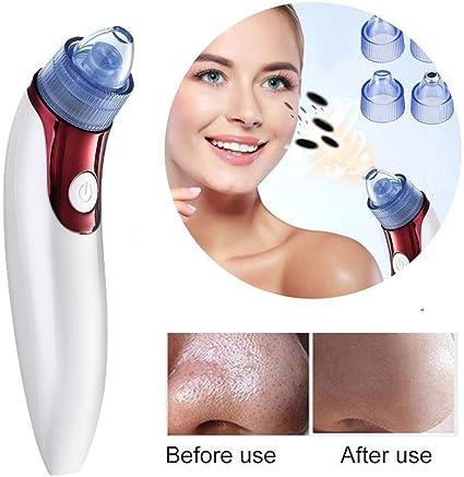 Limpiador facial eléctrico para piel, cuidado de puntos negros ...