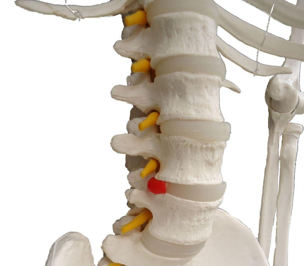 Cranstein A-111 Skelett-Modell lebensgroß 180cm mit Anatomieposter ...