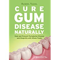 Cure Gum Disease Naturally: Heal and Prevent Periodontal Disease and Gingivitis with Whole Foods