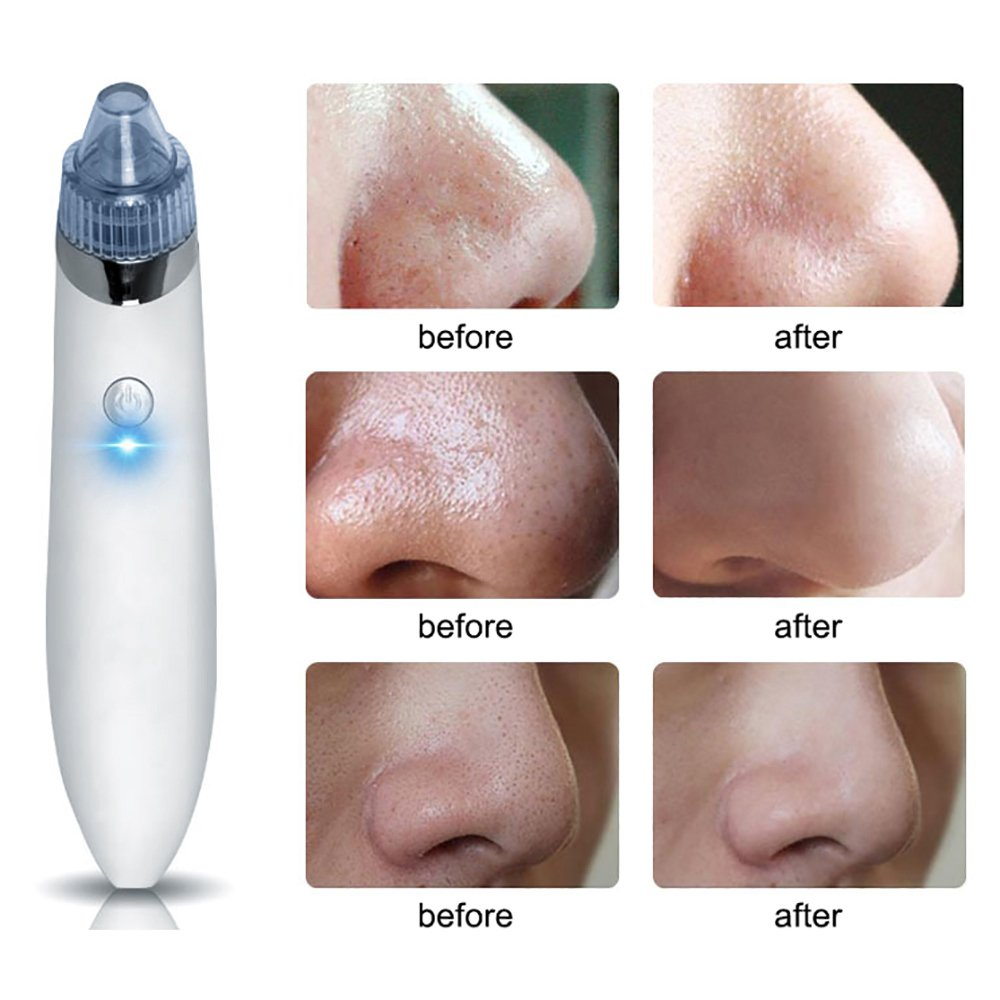 Vacuum Punti Neri Aspiratore Rimozione Comedoni e Brufoli Facial Pore Cleaner 4 teste Intercambiabili / Ricarica USB Contever