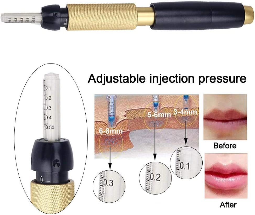ALL YOU NEED TO KNOW ABOUT THE HYALURONIC PEN!, dermalfillerbeforeandafter