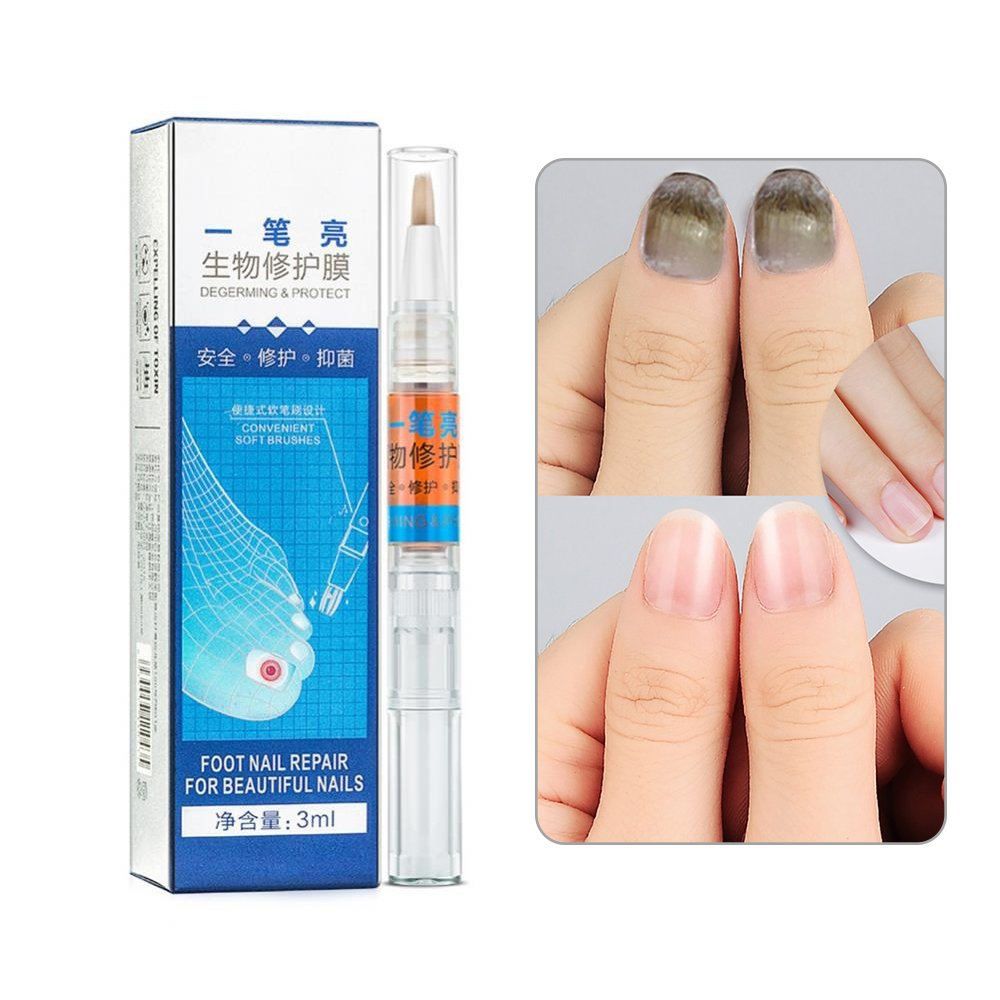 Fungus Stop, Anti Fungus Nail Liquid Restores Toenail Fungus for Finger & Toe Nails, Clear, 3 ml Filfeel