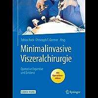 Minimalinvasive Viszeralchirurgie: Operative Expertise und Evidenz