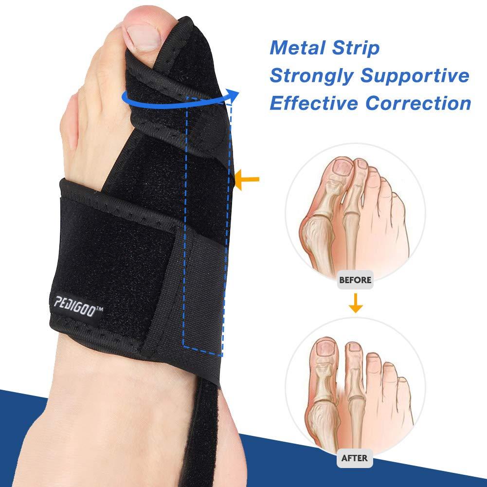 Amazon.com: Bunion Corrector Bunion Relief Kit (Bunion Splints, Gel Toe Protect Separator Sleeves&Toe Separators) for Hallux Valgus -Day/Night Support for ...