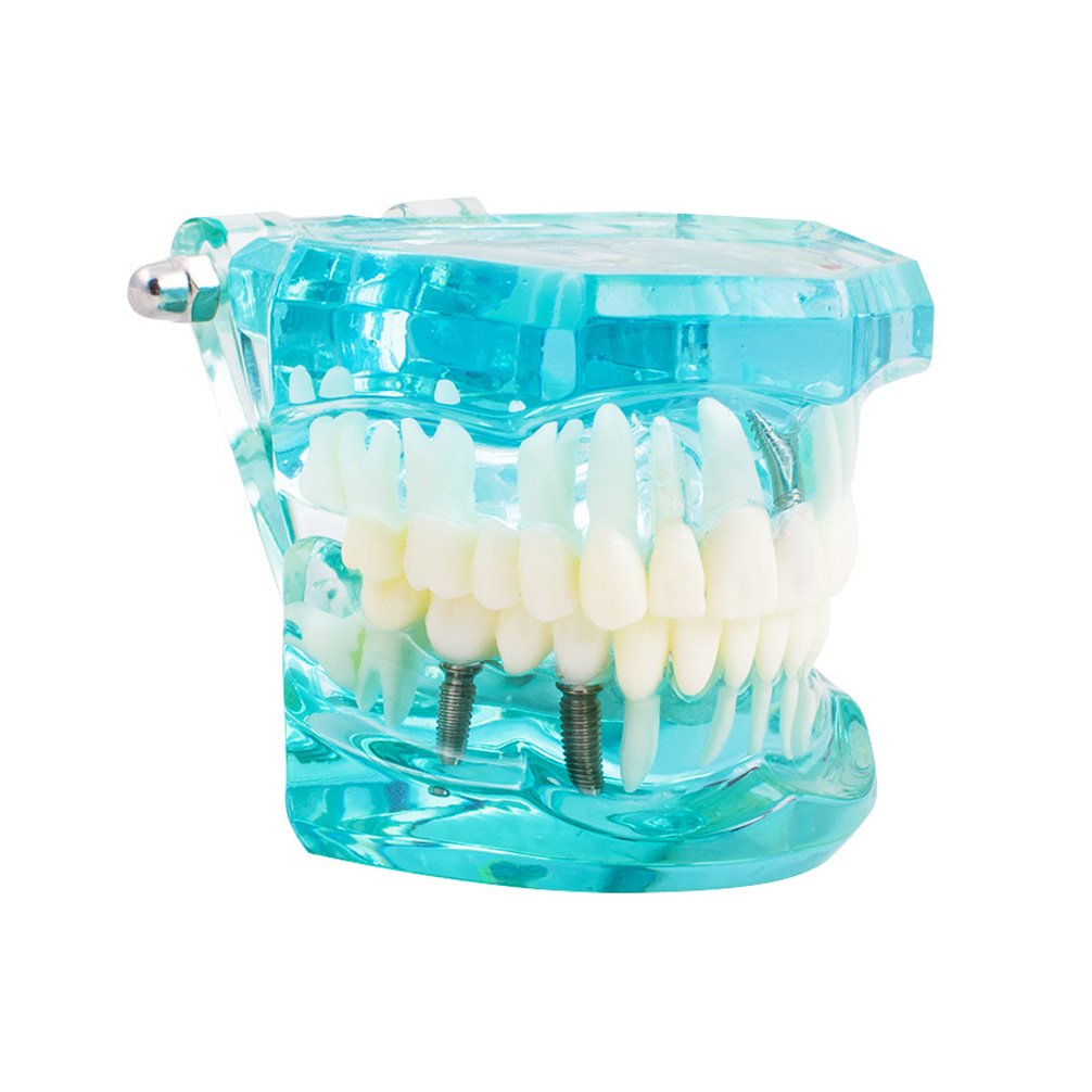 Pevor New Dental Study Teeth Transparent Adult Pathological Teeth Model (Shipping From US Fast Delivery)