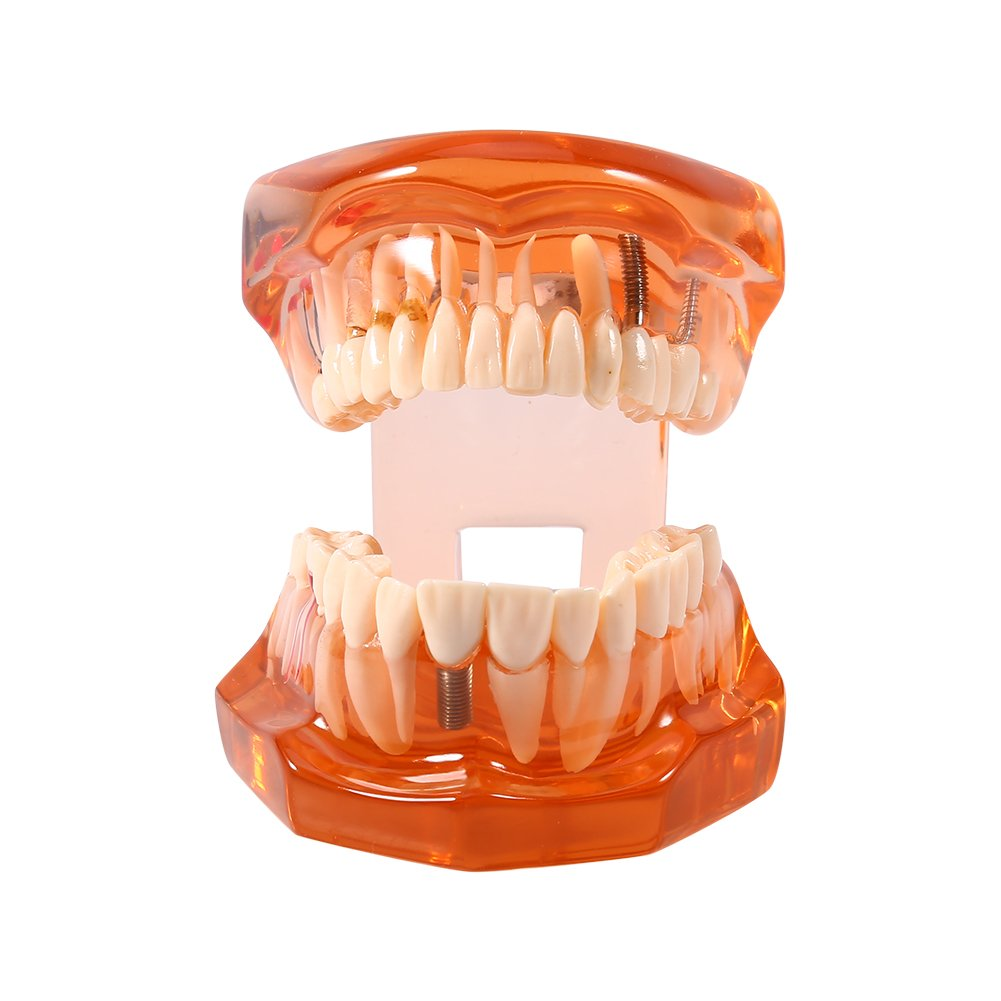 Removable Teaching Teeth Model Dental Implant Disease Adult Typodont Demonstration for Dental Teaching Study and Tooth Brushing Hygiene Education