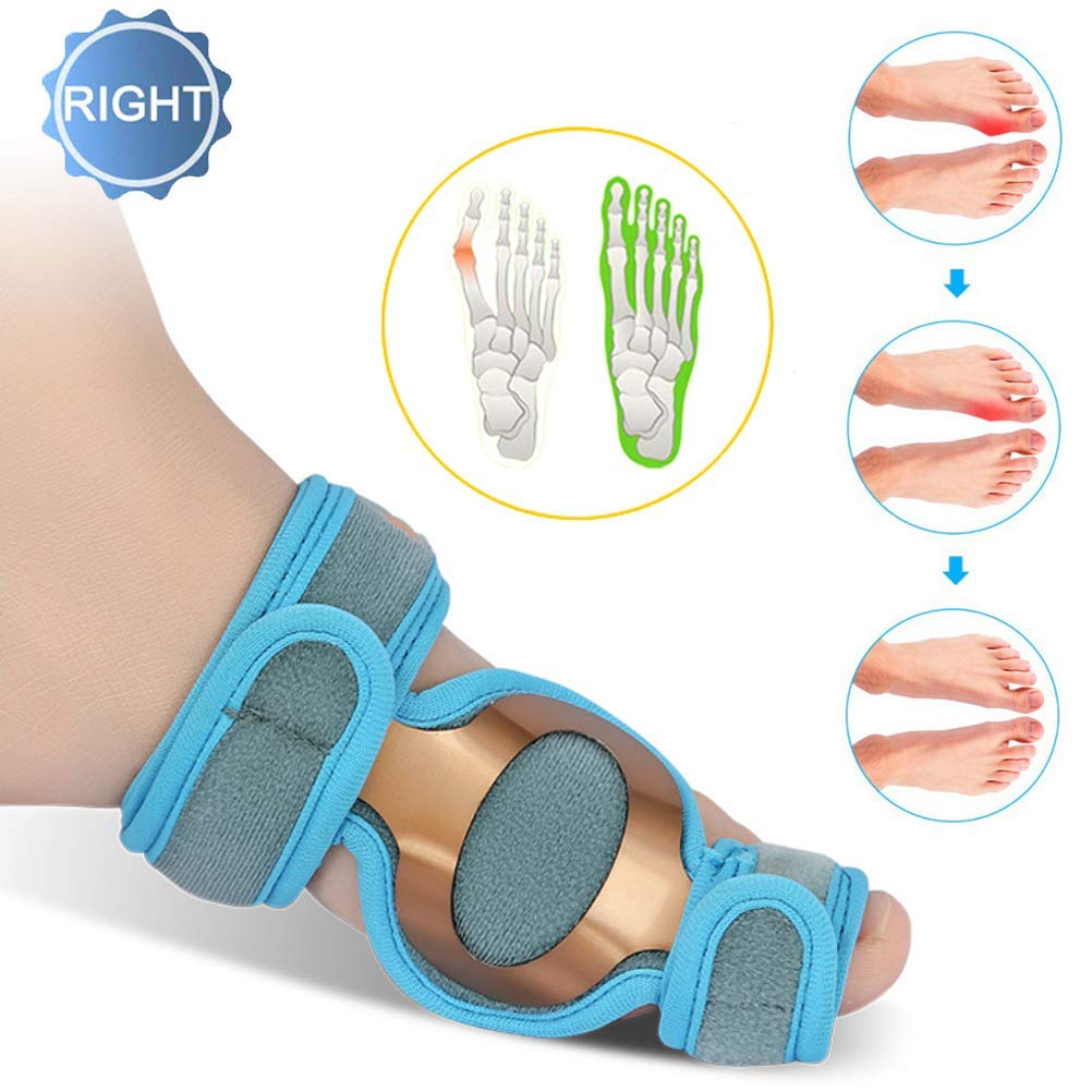 CXDM Big Bones Hallux Valgus Orthosis Pain Relief Overlapping Toe,Effective and Comfortable Correction Splint Bunion Corrector,Right by CXDM