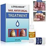 Antimicotico,Nail Fungus Treatment,Trattamento Fungine, favorisce la ricrescita delle unghie sane - per unghie danneggiate e scolorite - Adatto per dita e unghie dei piedi