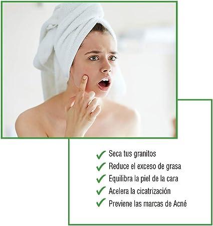ZOWIX Crema anti acne. Elimina espinillas y granos. Tratamiento facial antiacné natural y efectivo con A. Salicílico y Oxido de Zinc. Todo tipo de acné. 50 ml