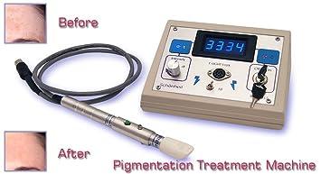 Máquina de tratamiento de la piel Hyper Pigmentation, Hogar, Clínica, Sistema de salón