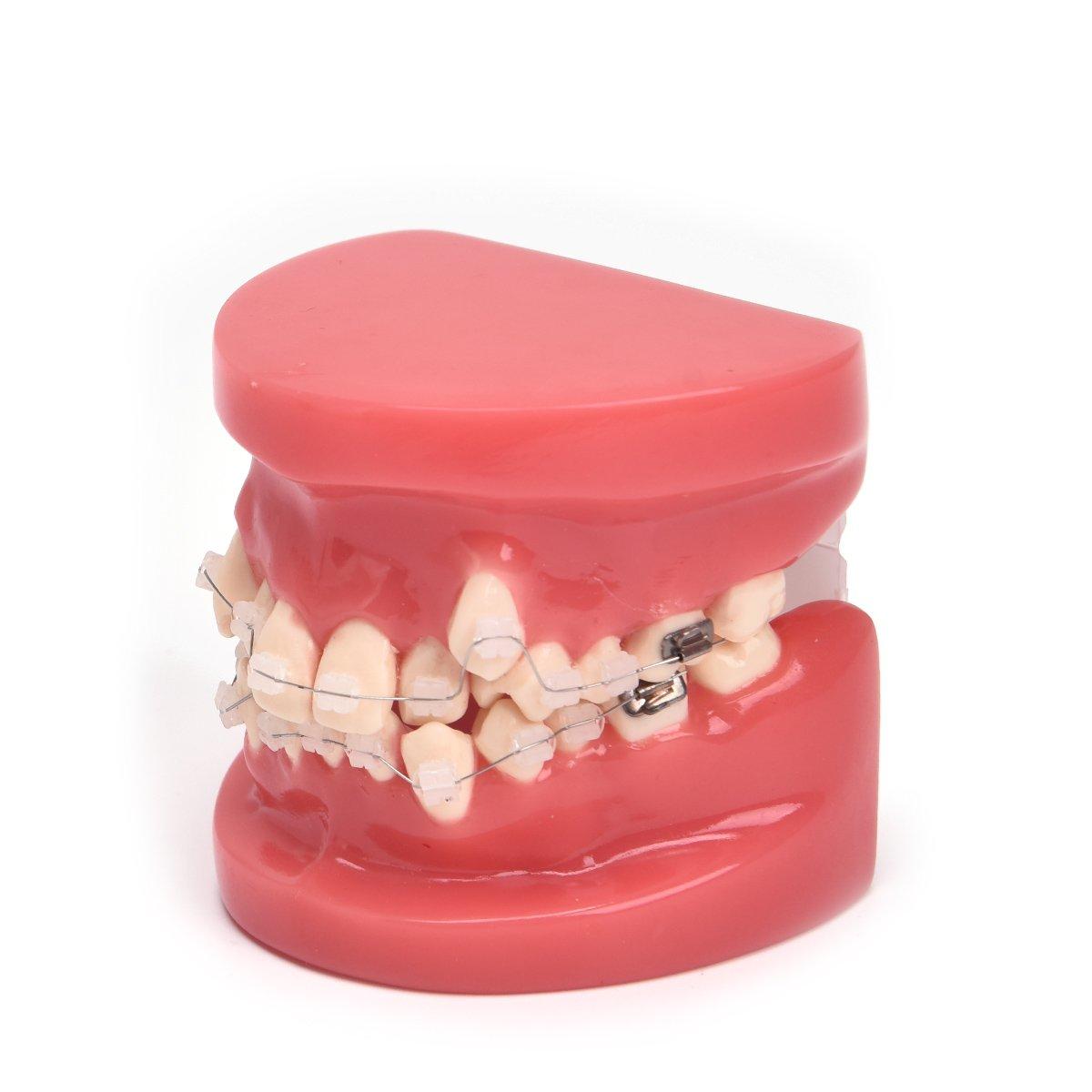 Annhua Demonstration Orthodontic Model Teeth Teach Study Tools with Transparent Ceramic Bracket
