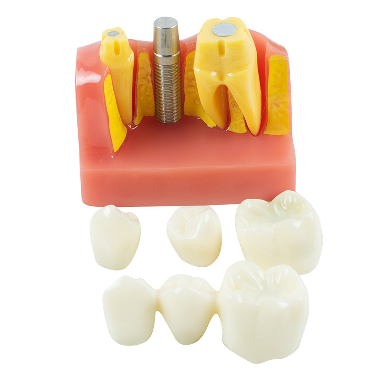 Teeth Model,Angelwill Dental Demonstration Implant Analysis Model with Crown Bridge for Student Learning Education(Shipped from US)