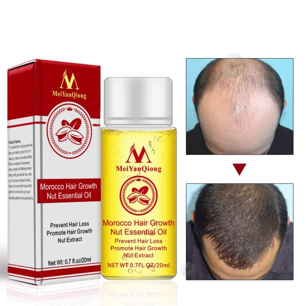 Amazon.com: Morocco Hair Growth Nut Essential Oil Prevent Hair Loss Promote  Hair Growth Oil 20ml/0.7fl.oz: Beauty