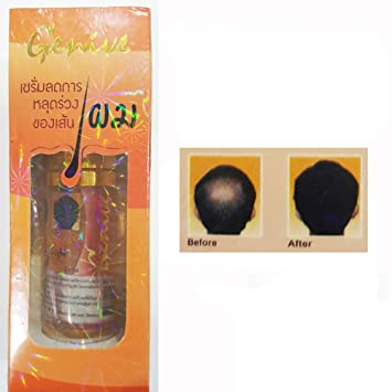 Genive Hair Loss Treatment Serum Ginseng Extract Long Growth