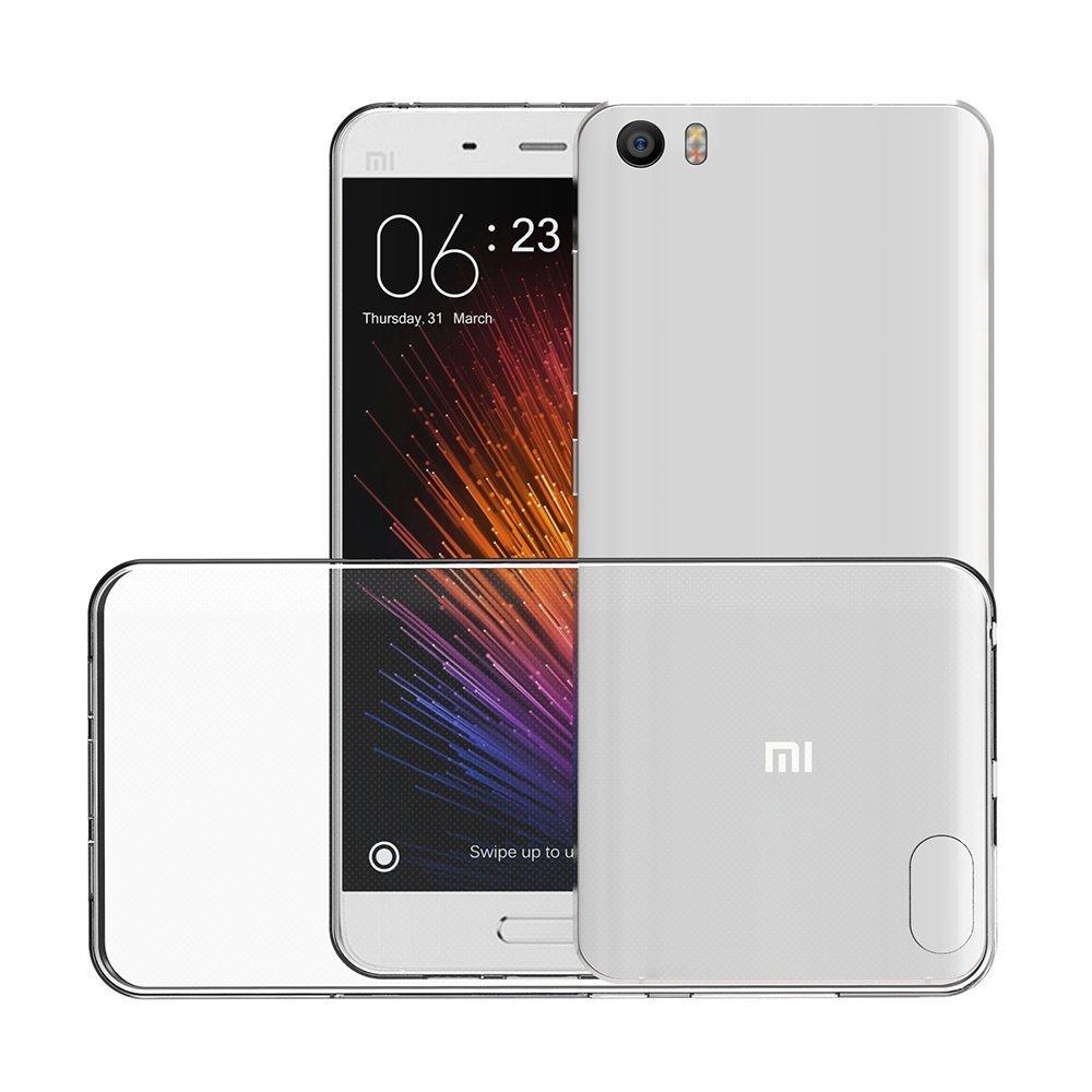 Carcasa para Xiaomi Mi5 MI6, Carcasa Xiaomi Mi5 MI6 MIA 5 6 ...