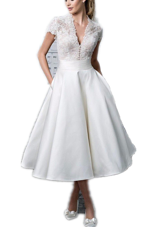 YASIOU Elegant Damen A Linie Kurz Spitze Weiß Vintage Knielang ...