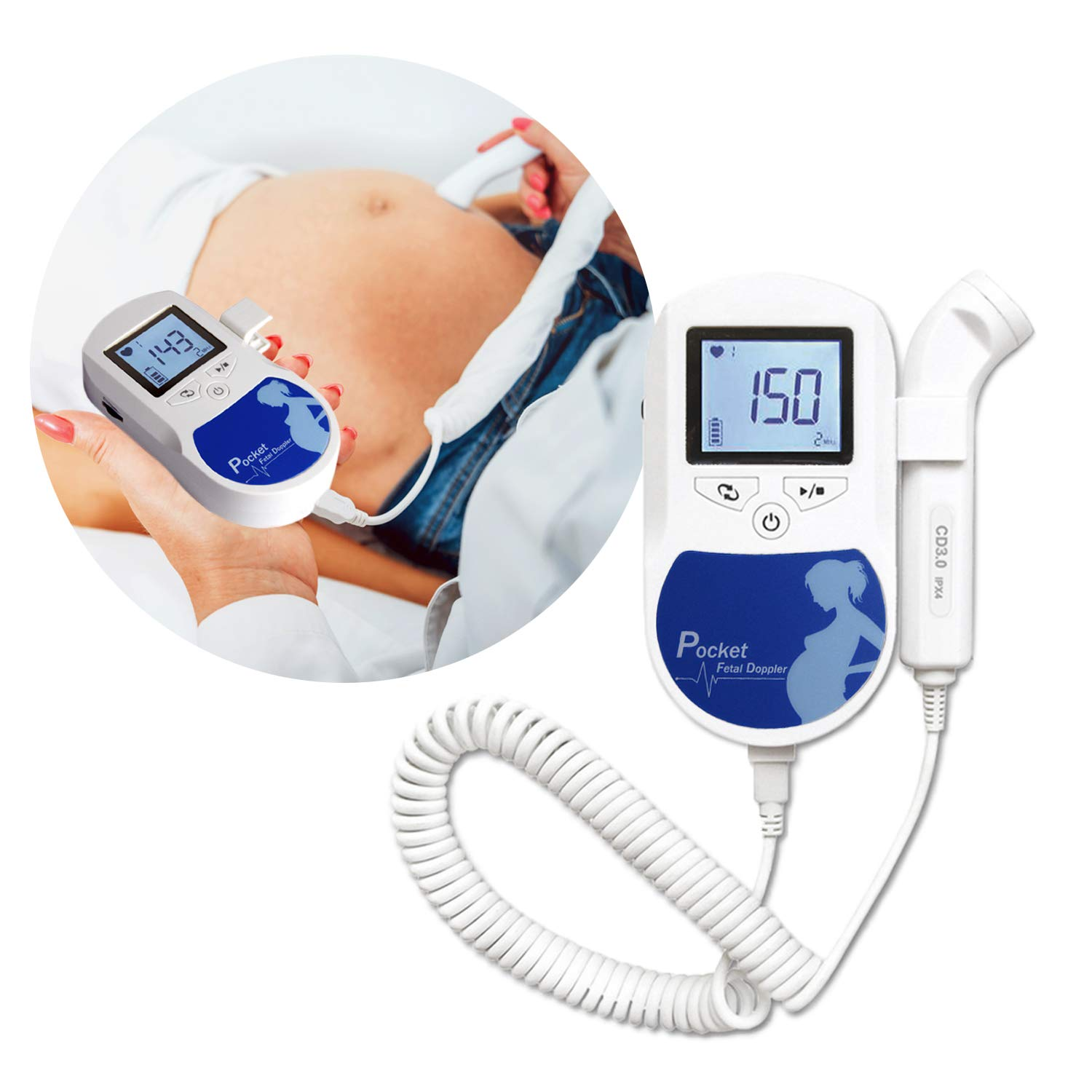 3 MHz Pocket Size Baby Echo Device - Comes with Crooked Probe and Batteries - The Perfect Reliable Gadget for Your Baby by Happy Toes (Image #4)