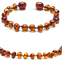 Baltic Secret New New Baltic Amber Anklet Bracelet Cognac - Handmade 100% Genuine Amber Beads - Premium Quality - Sizes 13-19 cm