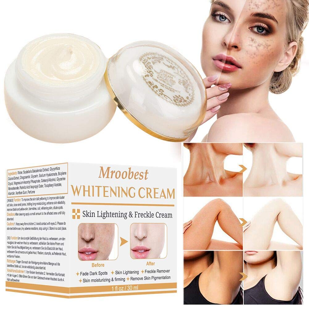 Whitening Cream for Face, Dark Spot Corrector, Brightening Cream, Dark Spot Corrector for Face, Spot Cream for Face, Freckle Fade Removal, Age Spots for Face and Body by CIDBEST