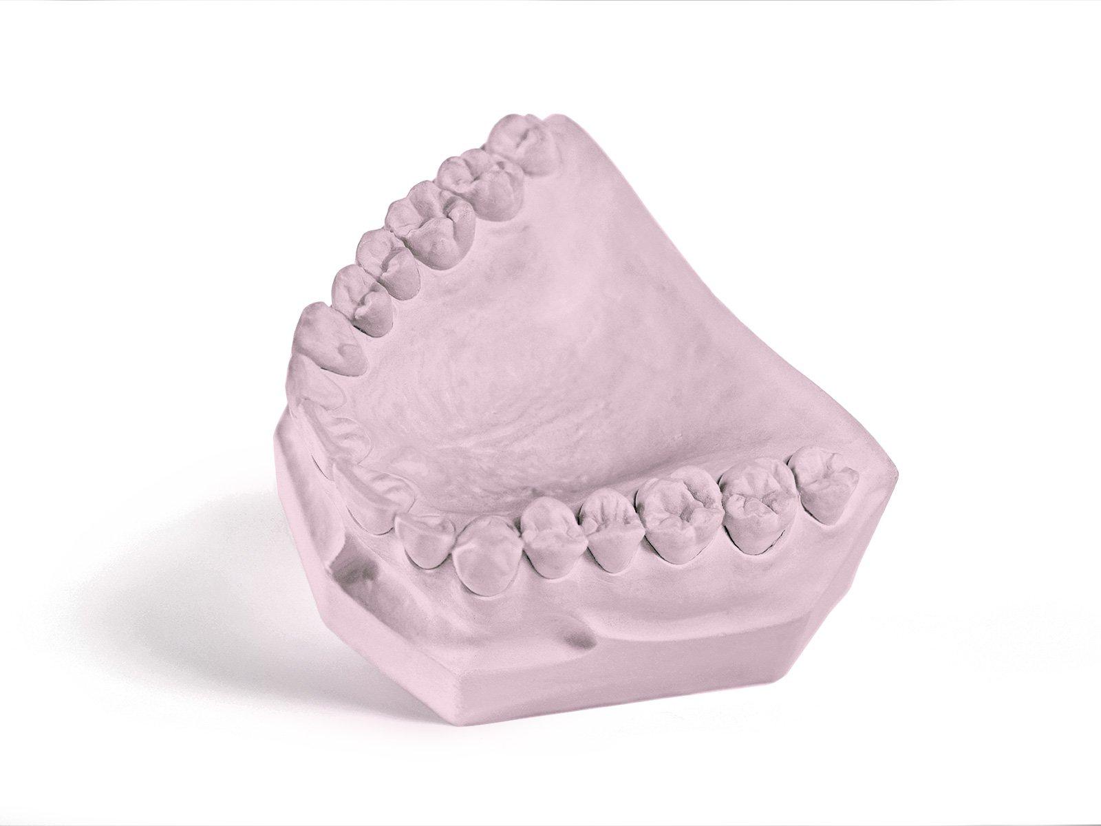Garreco 1285025 Dental Express Set, Type IV Fast Set Die Stone, 25 lb Carton, Pink