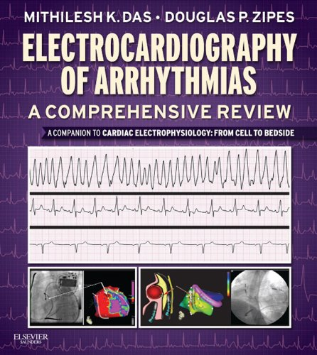 Electrocardiography of Arrhythmias: A Comprehensive Review E-Book: A - Holter Monitoring