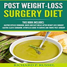 Post Weight-Loss Surgery Diet: Gastric Bypass Cookbook, Gastric Sleeve Cookbook Audiobook by Richard P. Russel Narrated by Alex Lancer