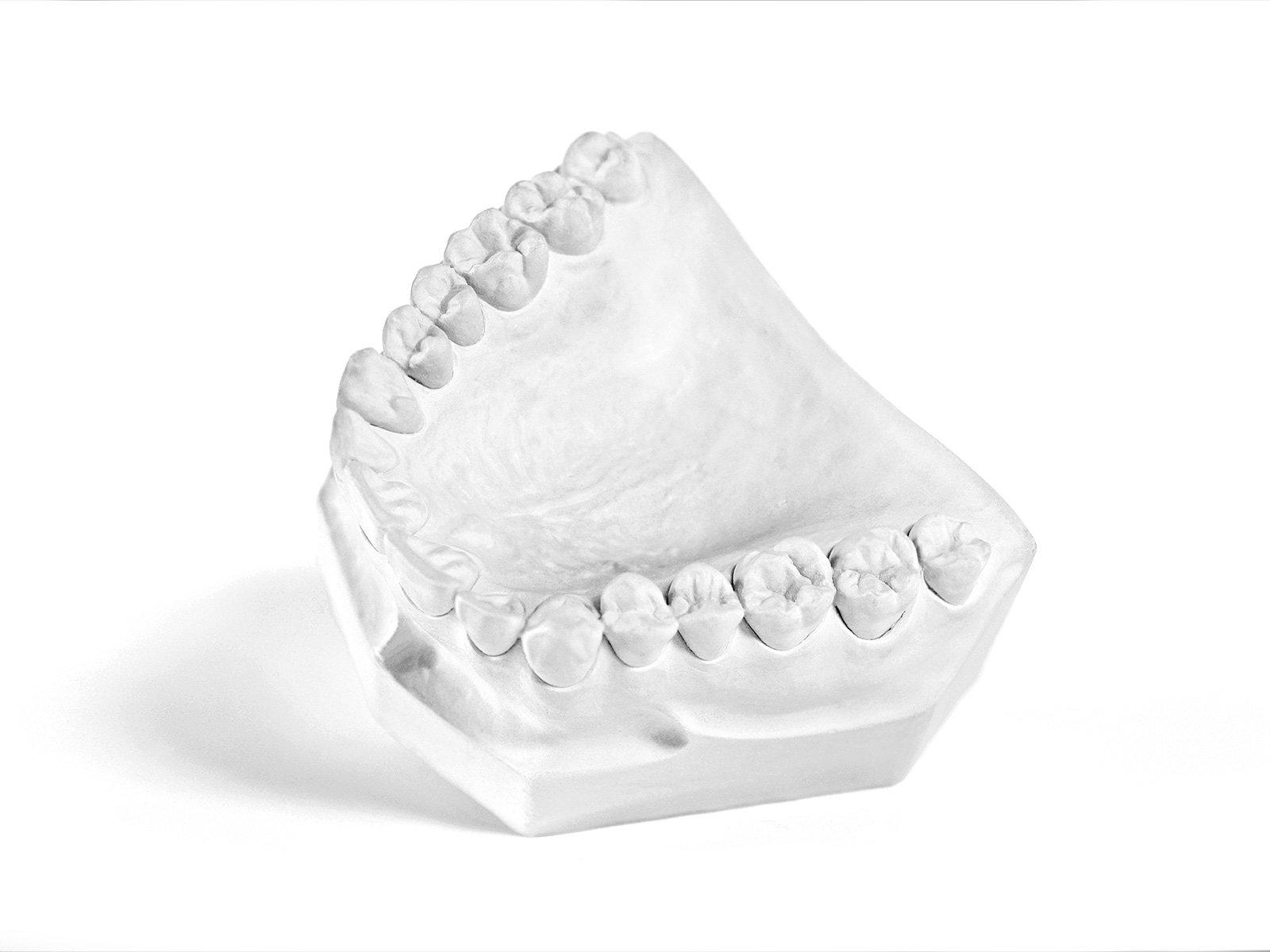 Garreco 1500025 Dental Plaster Fast Set, Type II General Purpose Gypsum, 25 lb Carton, White