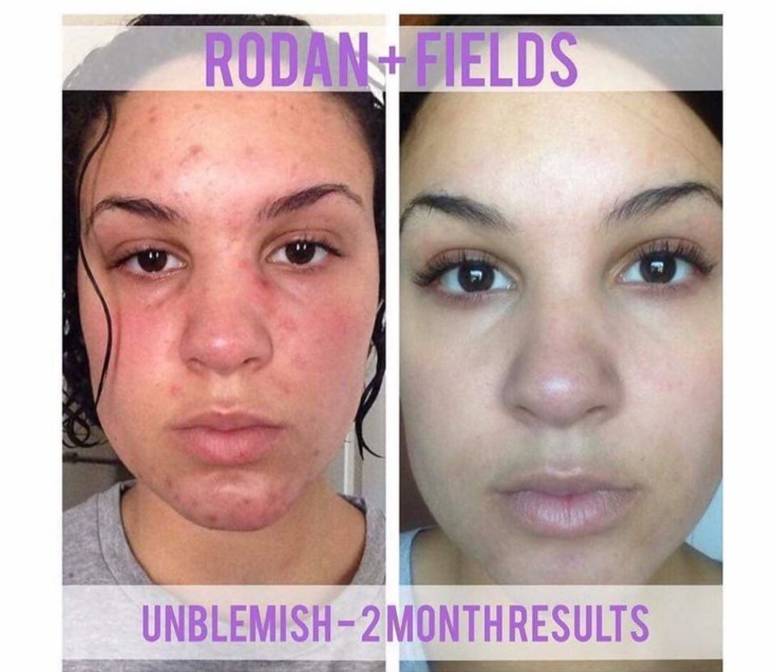 amazoncom rodan and fields unblemish regimen for acne and post acne marks kit beauty
