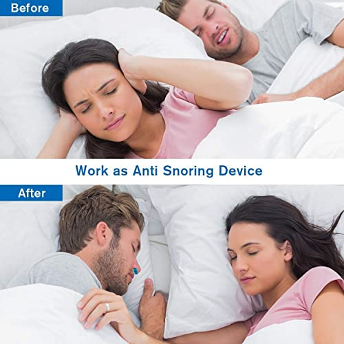 XmnDaue Anti-Snoring Device