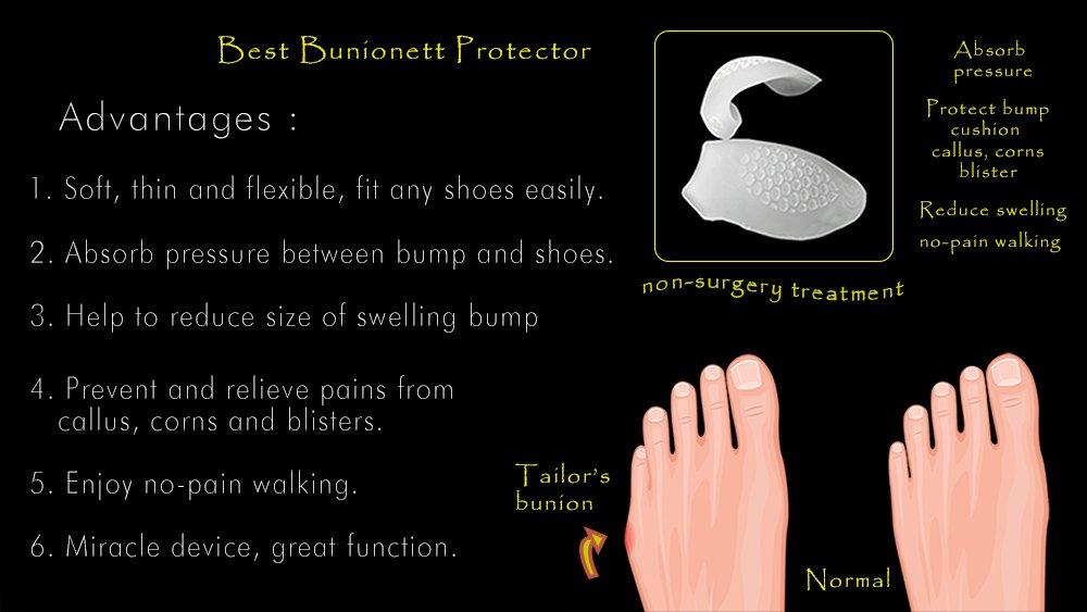 Amazon.com: USFOOT 100% Silicon Gel Little Toe Bunionnete Protector, tailors bunion protector, toe bunion guard, tailors bunion pad, (set of 2 pcs): Health ...