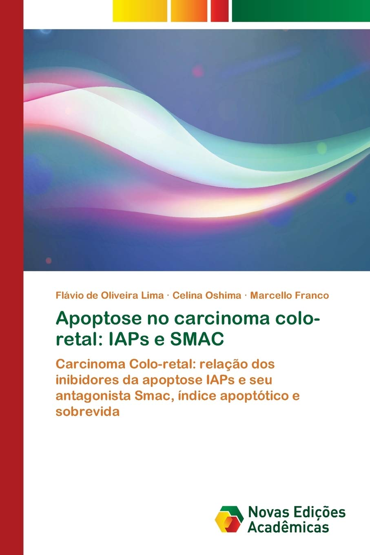Apoptose no carcinoma colo-retal: IAPs e SMAC: Amazon.es: de ...