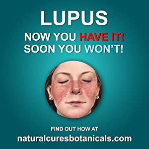 Lupus Natural Treatments: Natural Herbal Treatments for Alzheimers