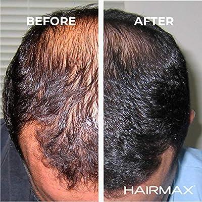 Dispositivo de crecimiento del cabello Hairmax Laserband 41: Amazon.es: Belleza